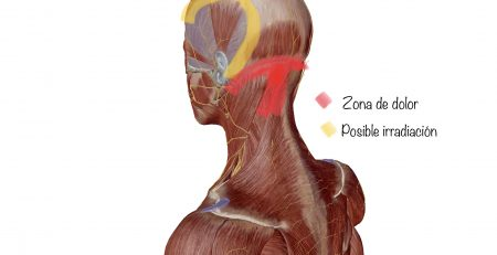 Dolor cervical fisioterapia